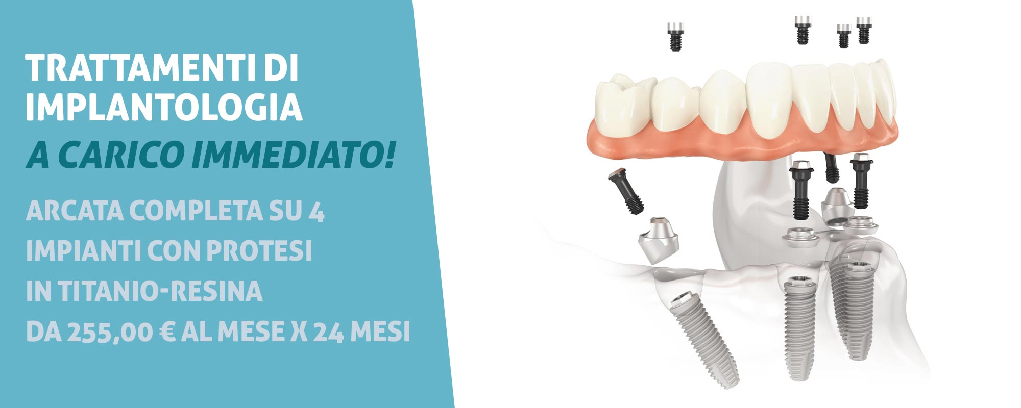 implantologia-a-carico-immediato-prezzi-bassi-low-cost