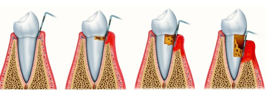 parodontite-foligno