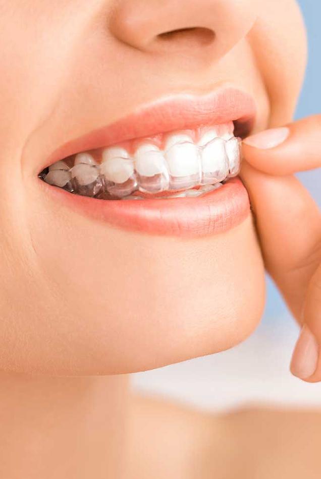 Ortodonzia trasparente | Studio Dentistico Calvi
