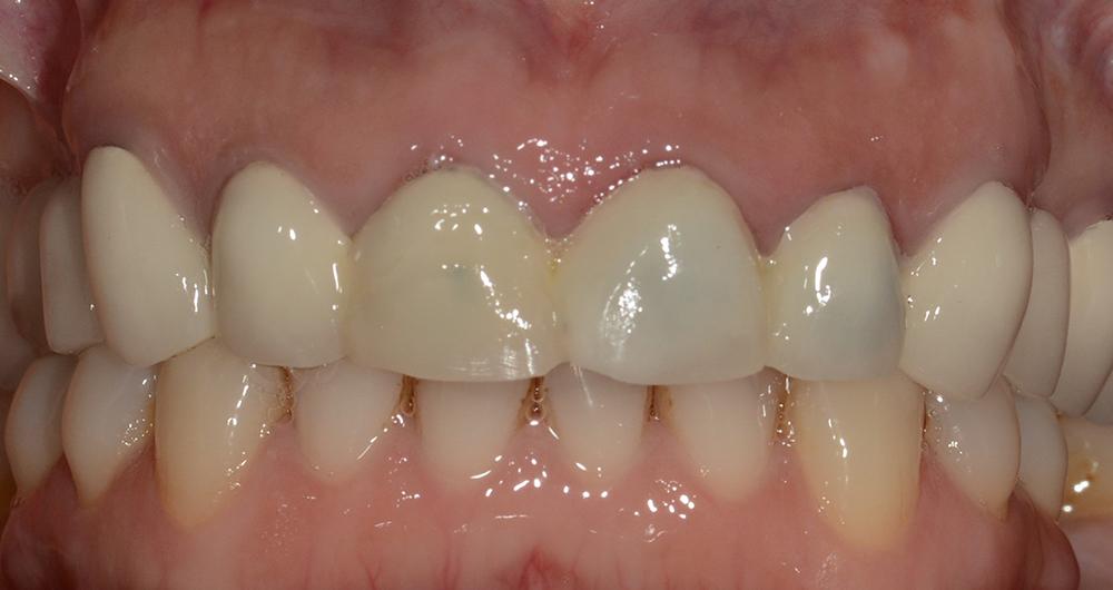 Estetica dentale | Studio Dentistico Calvi