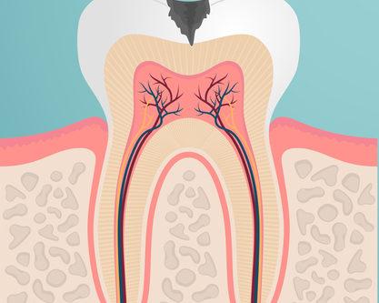 Sinusite mascellare 3