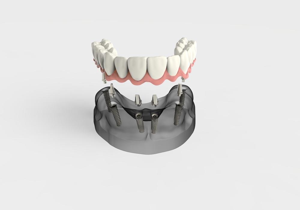Impianto dentale 2