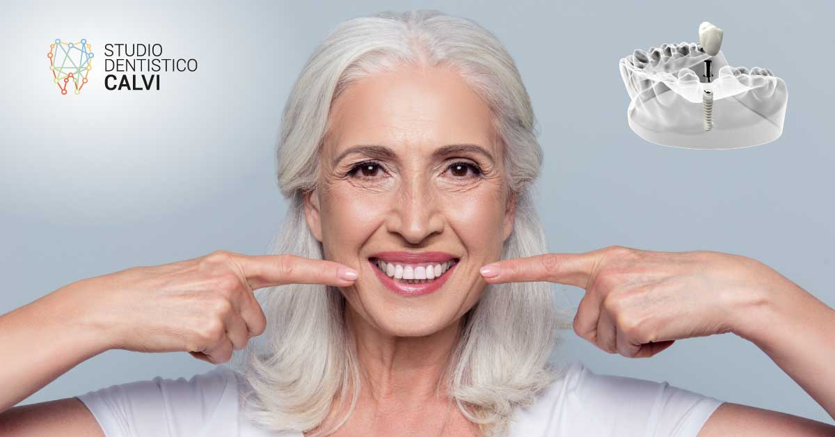 Impianto dentale 1