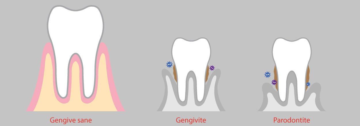 Parodontite e diabete 1