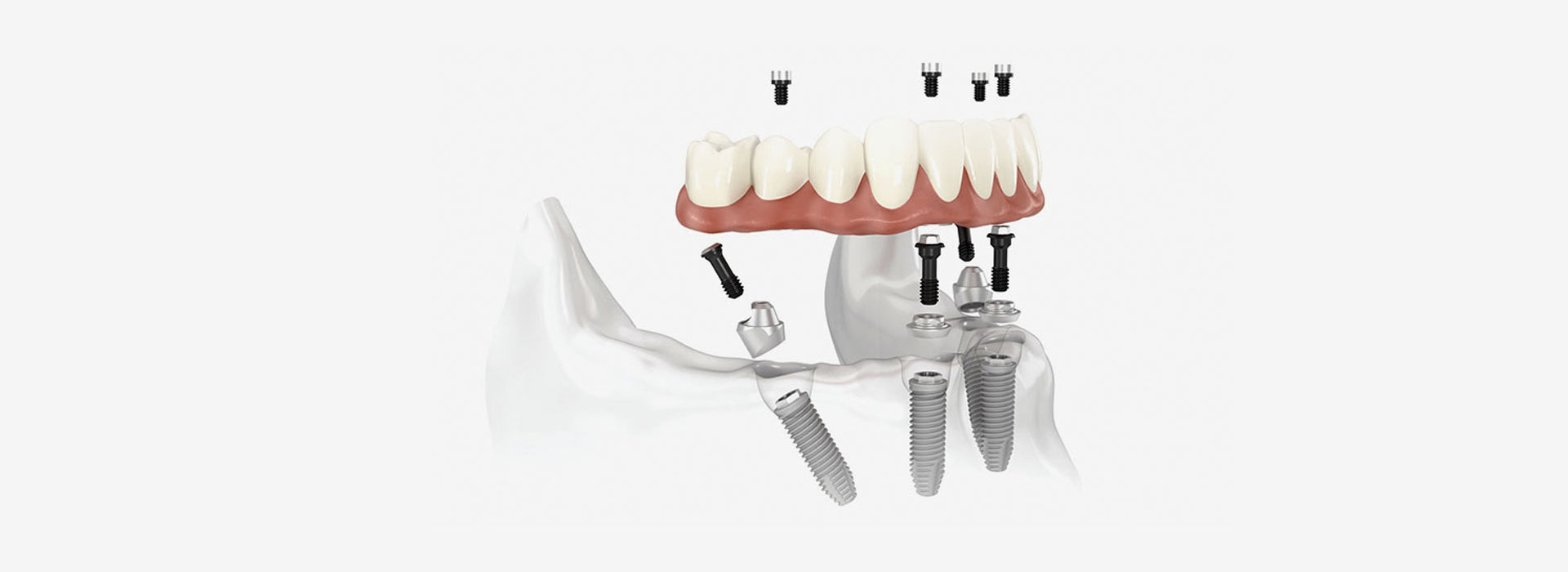 implantologia a foligno | Studio Calvi 1