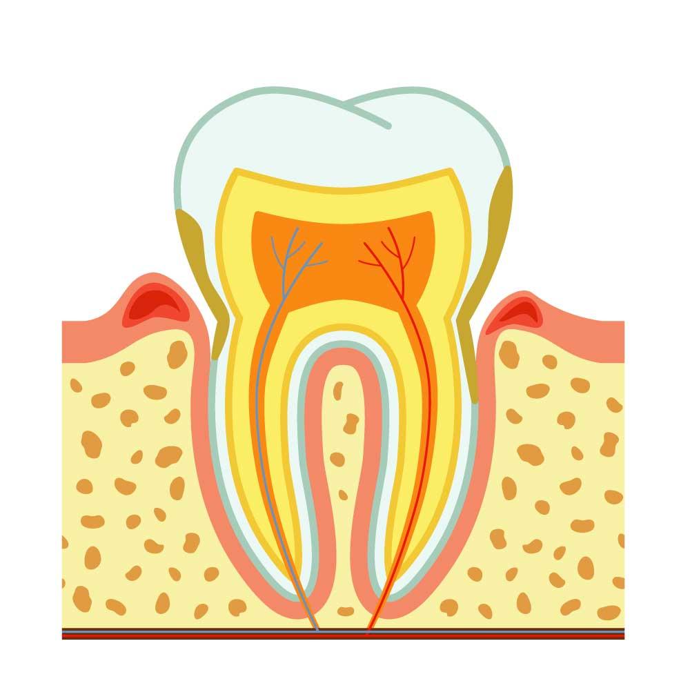 Parodontite e malattie sistemiche: gli studi