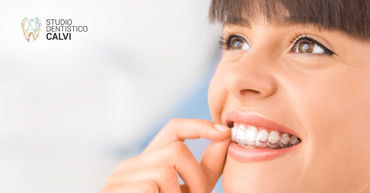 Come funziona l'apparecchio invisibile - Studio Dentistico Calvi