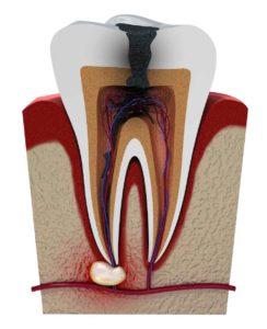 Ascesso dentale: cause