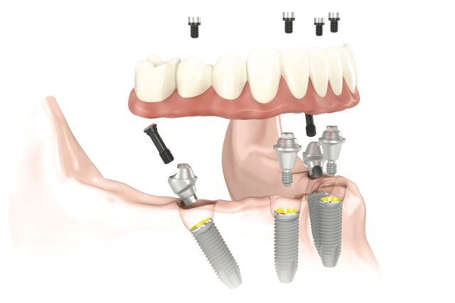 Prevenzione orale | Consigli | Studio Dentistico Calvi