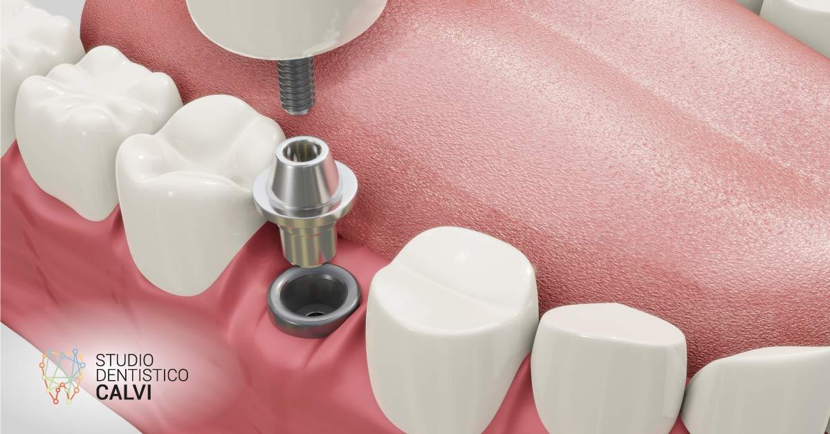 Impianti dentali | Studio Dentistico Calvi