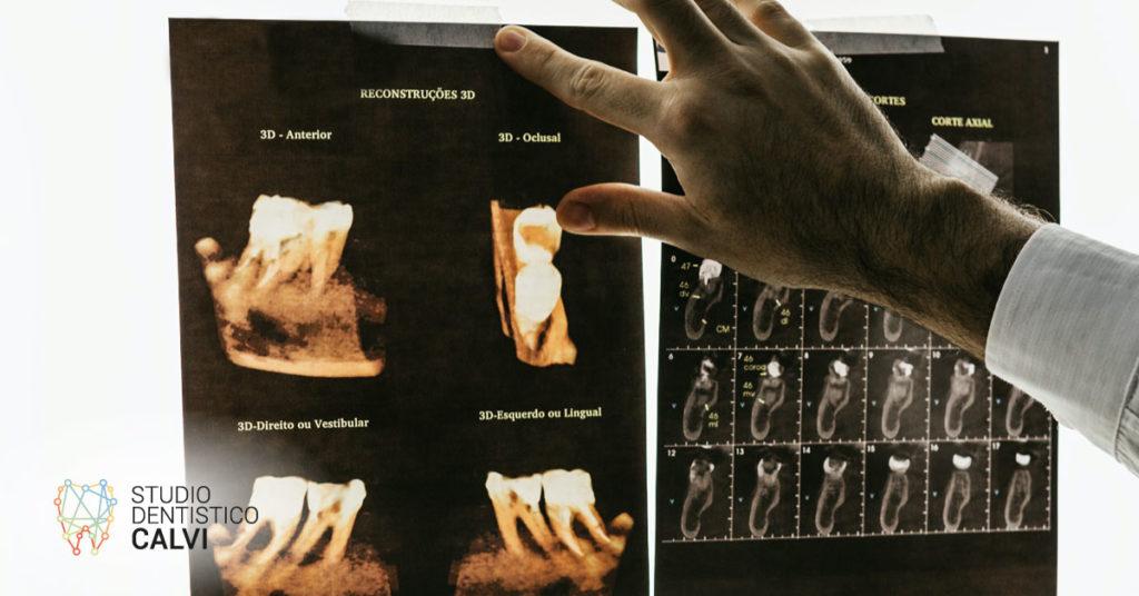 Dente che si muove | Studio dentistico Calvi