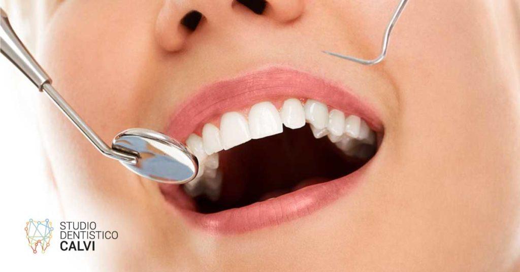 Pulizia delle tasche gengivali | Studio Dentistico Calvi