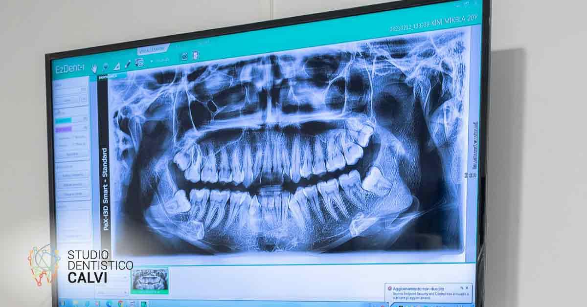 Riassorbimento dentale | Studio Dentistico Calvi